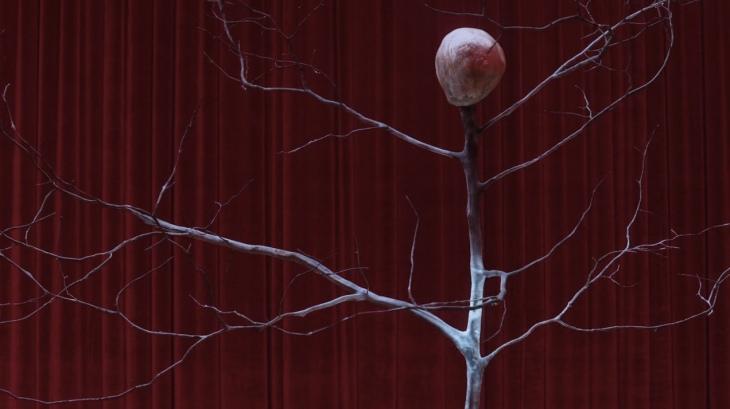 TP302 brain tree 1